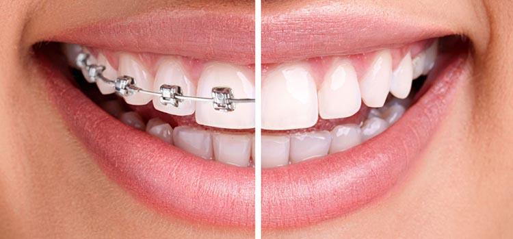 как выбрать хорошего ортодонта для исправления прикуса №3